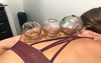 cupping reduce discomfort and decrease pain thresholds temporarily